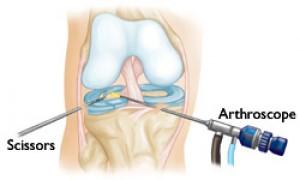 Artroscopia Simples